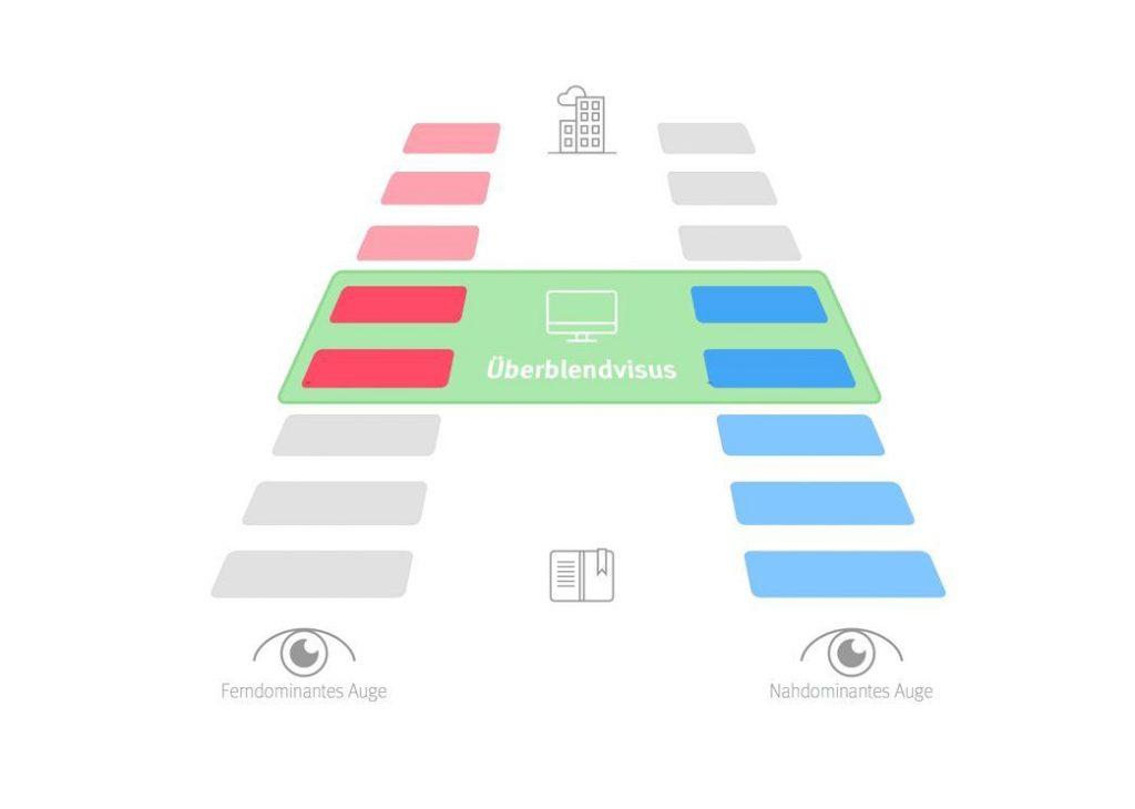 Augenpraxis-weyhe-grauer-star-monovision