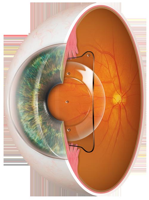augenpraxis-weyhe-implantierbare-kontaktlinsen
